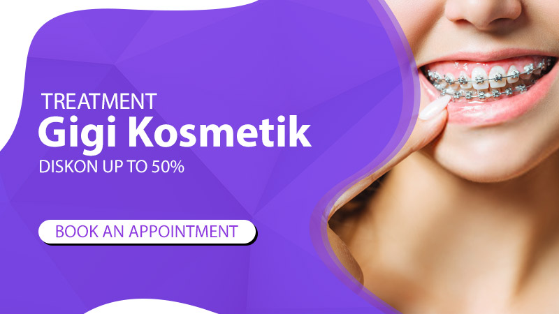 Klinik Gigi kosmetik Murah di Jakarta