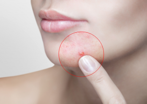 Acne Injection