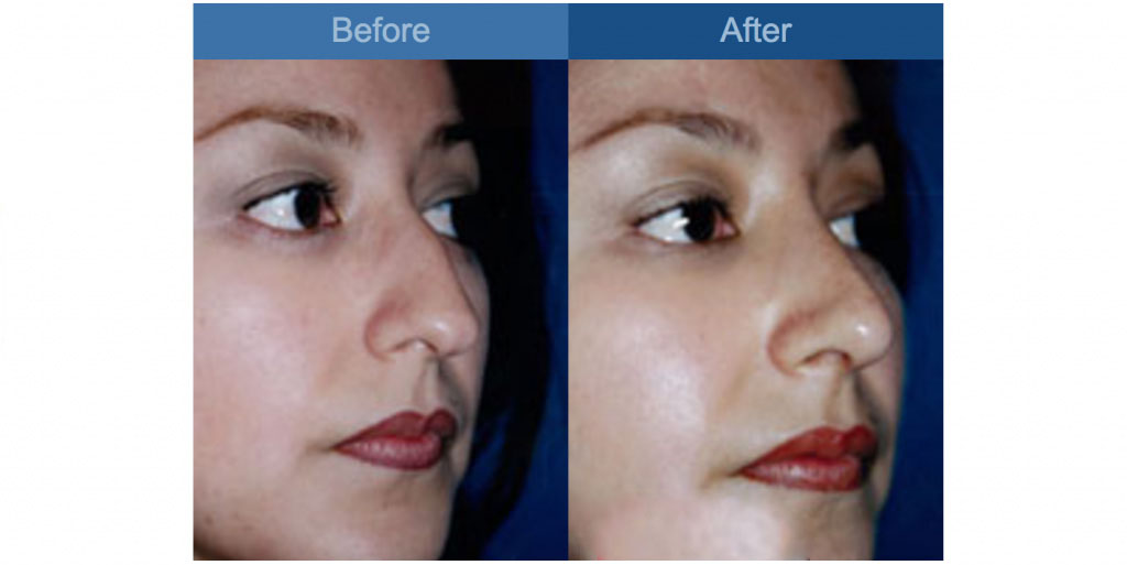 nose reshaping procedure