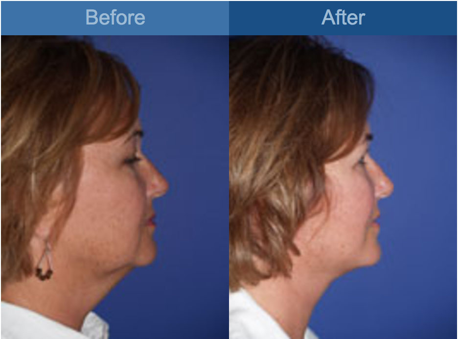 face lift procedure before and after