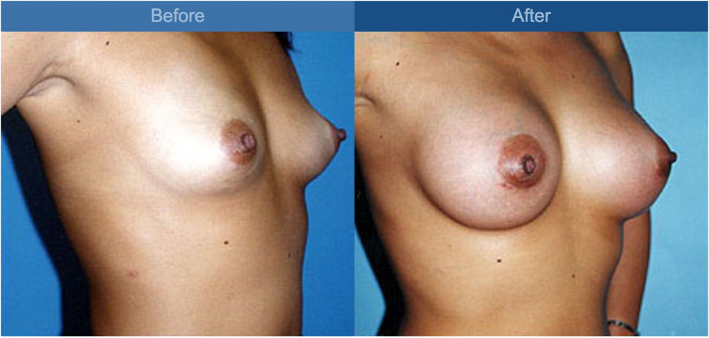 breast enhancement side