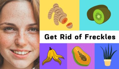 Best Home Remedies to Get Rid of Freckles