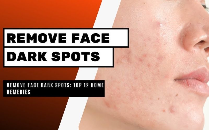 Home Remedies to Remove Dark Spots on Face
