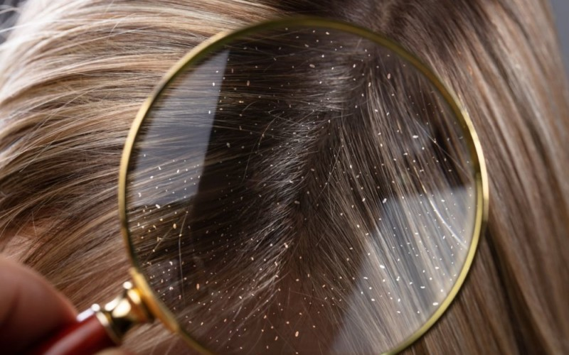 Top 12 Home Remedies to Get Rid of Dandruff Naturally