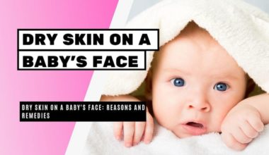 Dry Skin On Baby Face: Reasons And Remedies