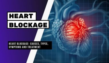 Heart Blockage Causes, Types, Symptoms and Treatment