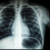 Mesothelioma Rates in Women are Increasing