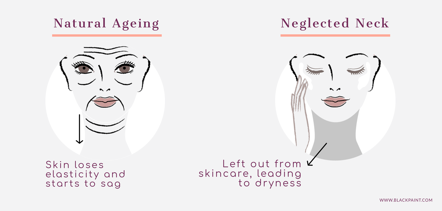 Neck wrinkles occur in natural aging process, as well s in neglected necks