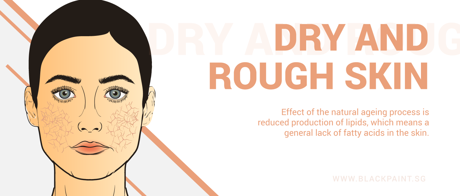 illustration of dry & rough skin is a natural effect of aging, due to the lack of fatty acids in your skin