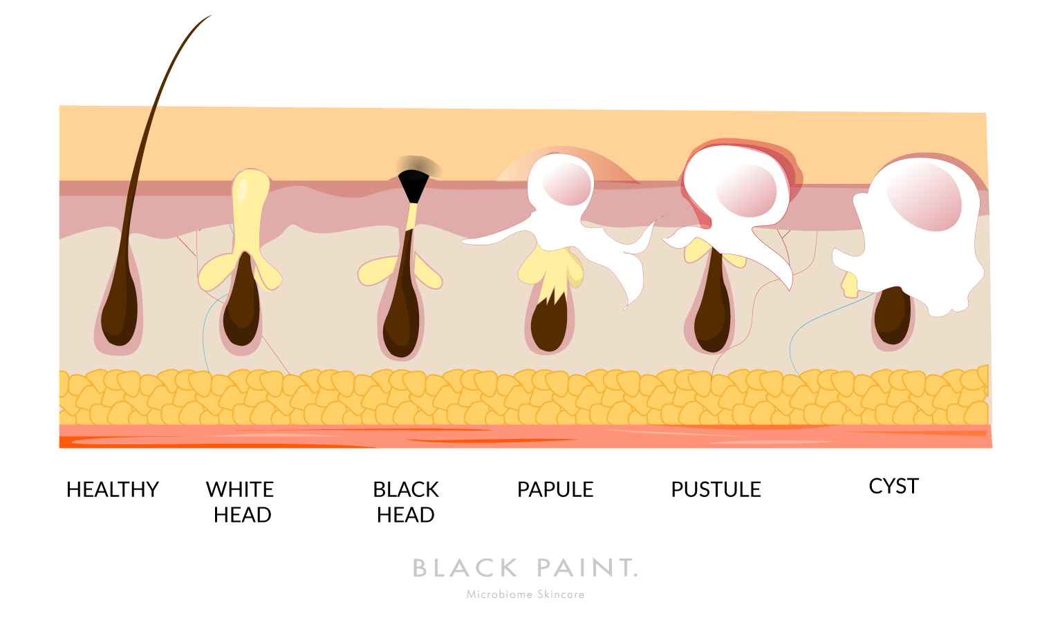 illustration of different types of skin pore problem