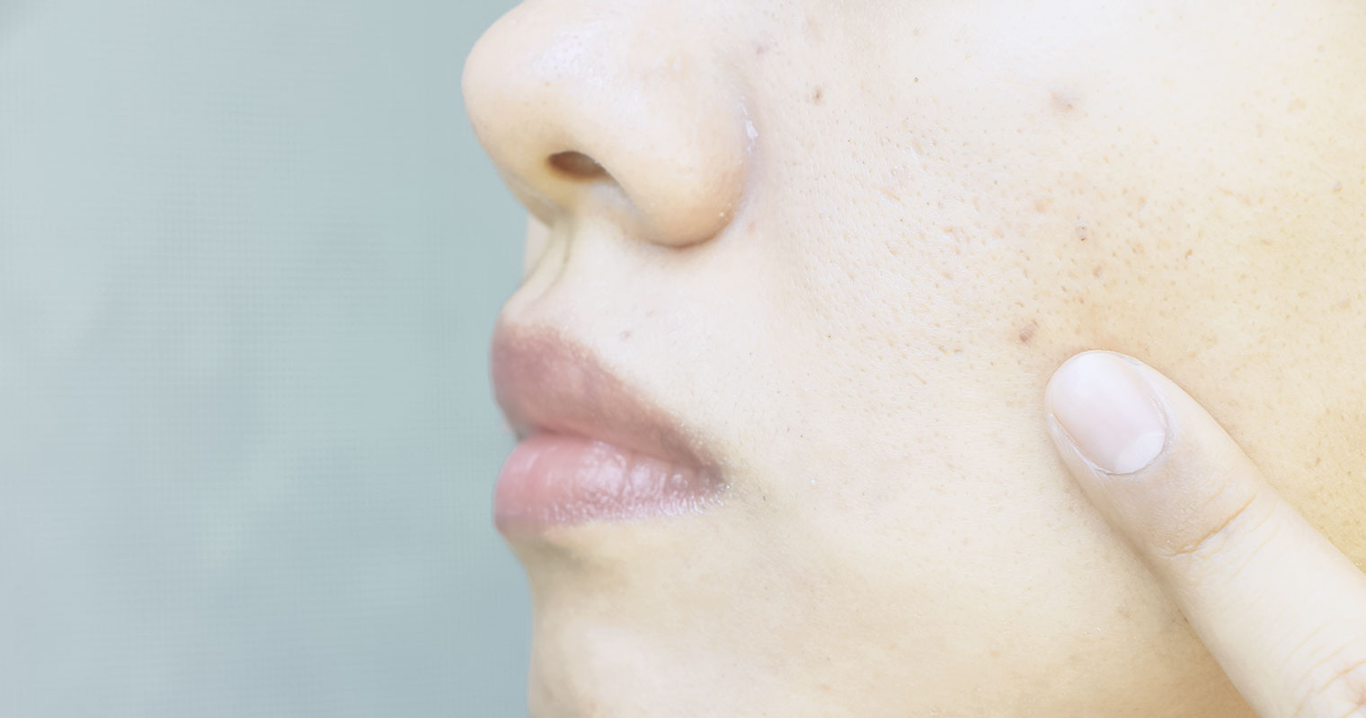 close up wide pores on oily face skin, nose and mouth which have problem skin of asia woman by woman use finger point focus problem on face have copy space on left side