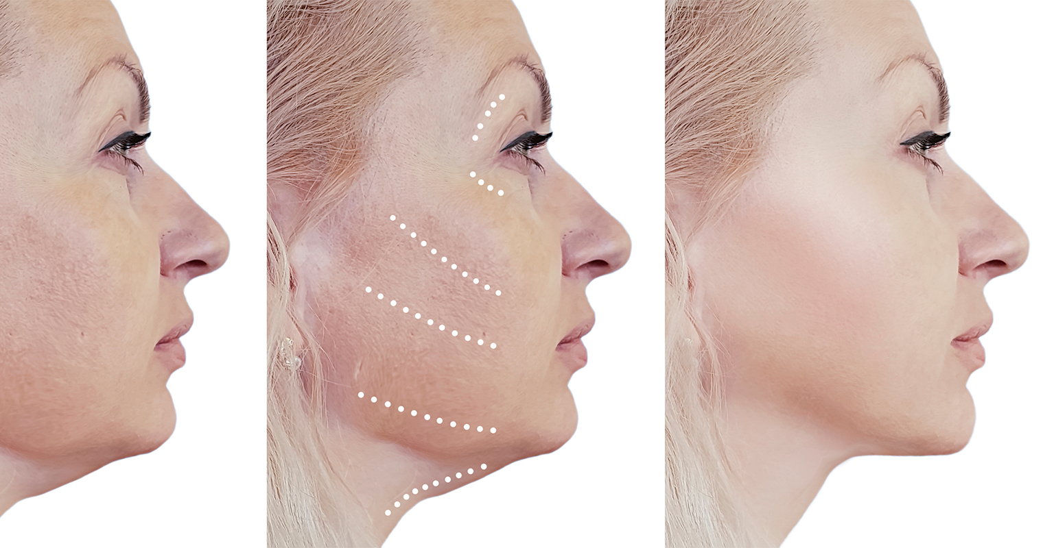 facelift before and after procedure