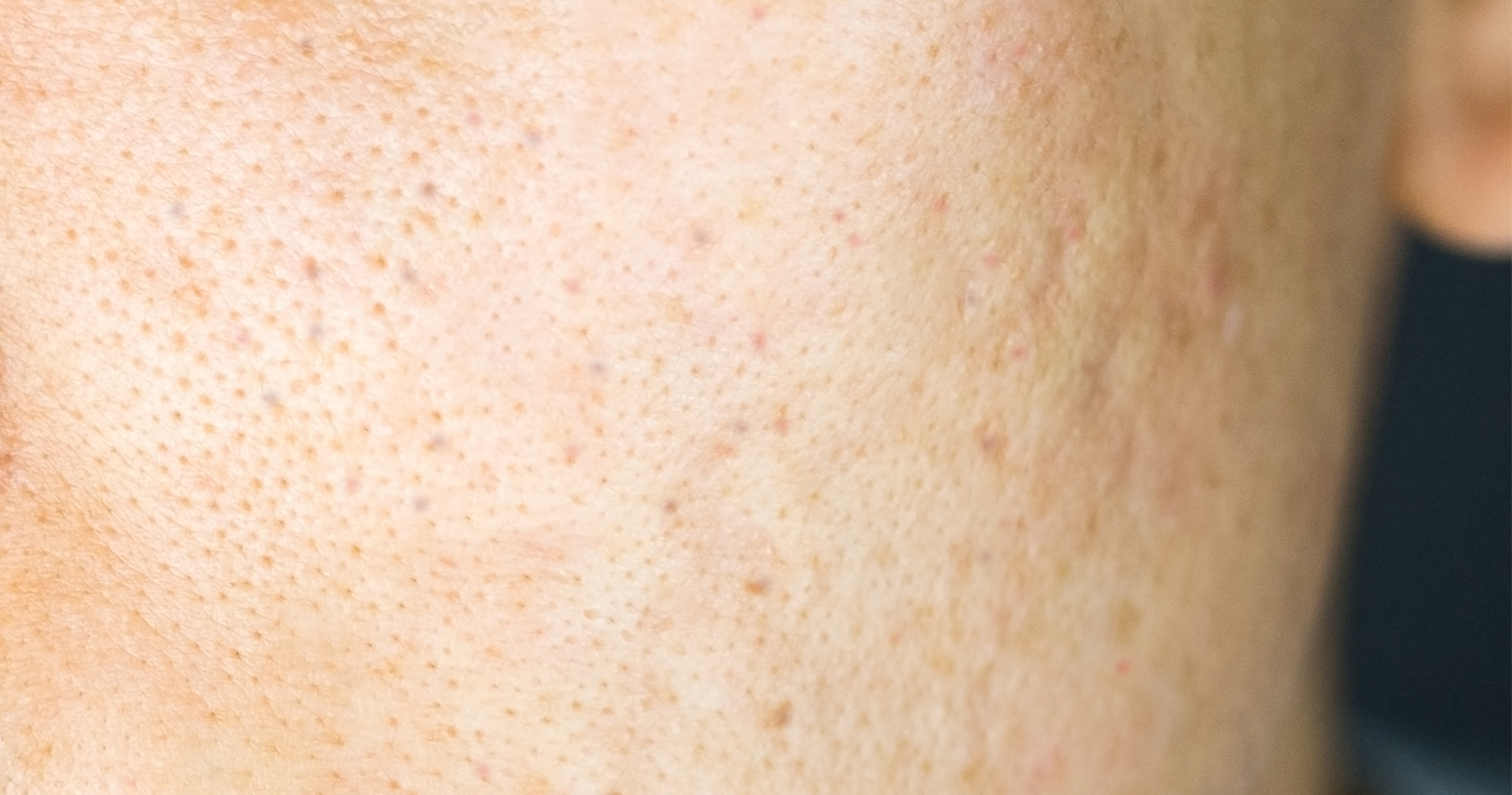 uneven skin texture is a characteristic of bad skin