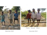 Fluorosis: A Problem of Serious  Dimensions, But Neglected By All Political  Parties