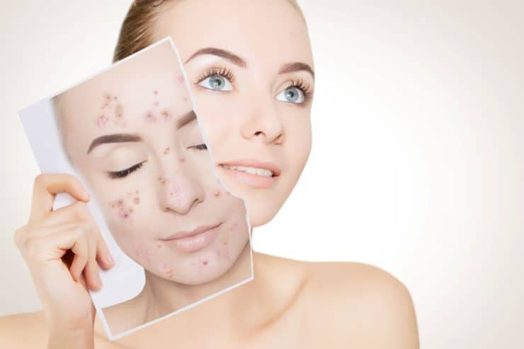 vegan Cures For Acne