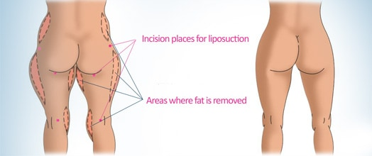 Ways To Permanently Reduce Fat