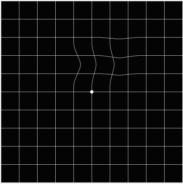 Amsler grid, looks wavy as a depiction of what people with central vision loss may see.
