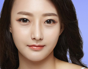 Forehead And Chin Implants In Korea