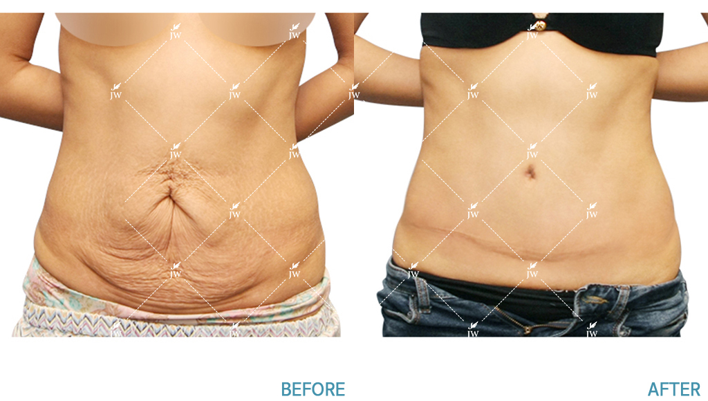 Before After body contouring korea
