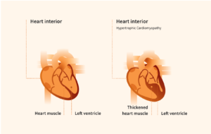 graphic showing heart interior for cardiomyopathy