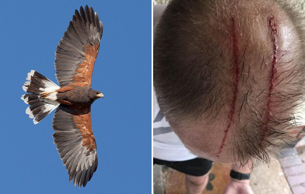A large, flightless bird native to australia and new guinea attacked and killed its owner when the man fell on his farm in florida, authorities said saturday. This Dude Was Attacked By A Hawk On His Run Men S Health