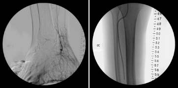 Before and After angiogram foot and leg