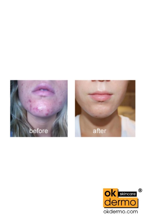 Retin a acne treatment before after