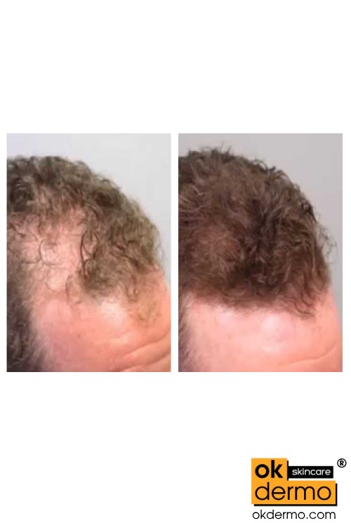 MInoxifil before after