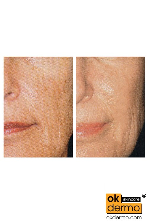 VC15 Vitamin C Serum for Skin Lightening and Freckles