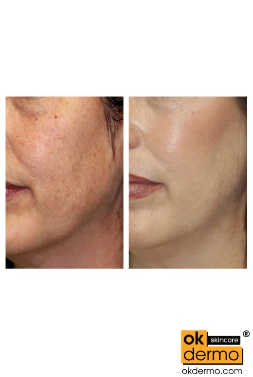Vitamin C Skin Serum Before After