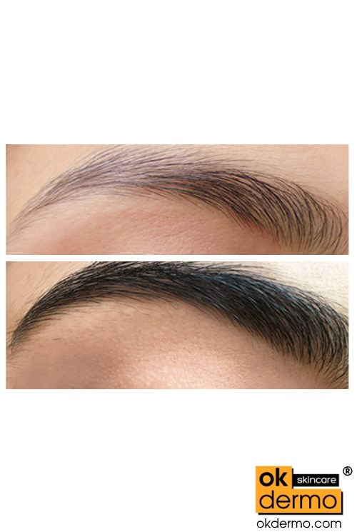latisse for eyebrows before and after