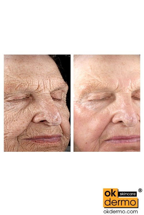 retin a before and after wrinkle pictures