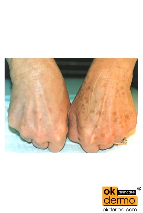 Hands before and after treatment Liver spot, Age spots