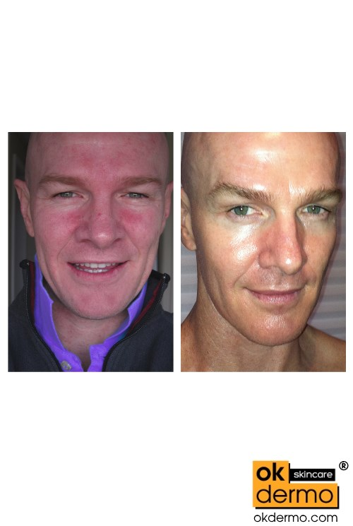 Before After Retin-A Cream