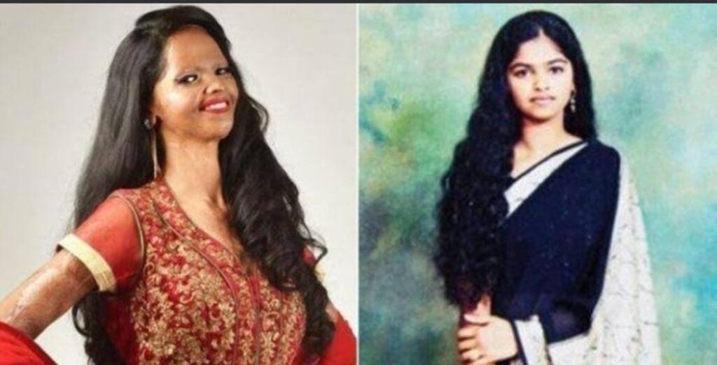 Picture of laxmi agarwal before and after the acid attack.