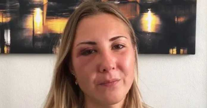 Young woman, 22, 'punched in face for wearing skirt' while walking home