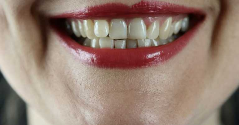 Dentists' warning over dangerous tooth flossing trend on TikTok