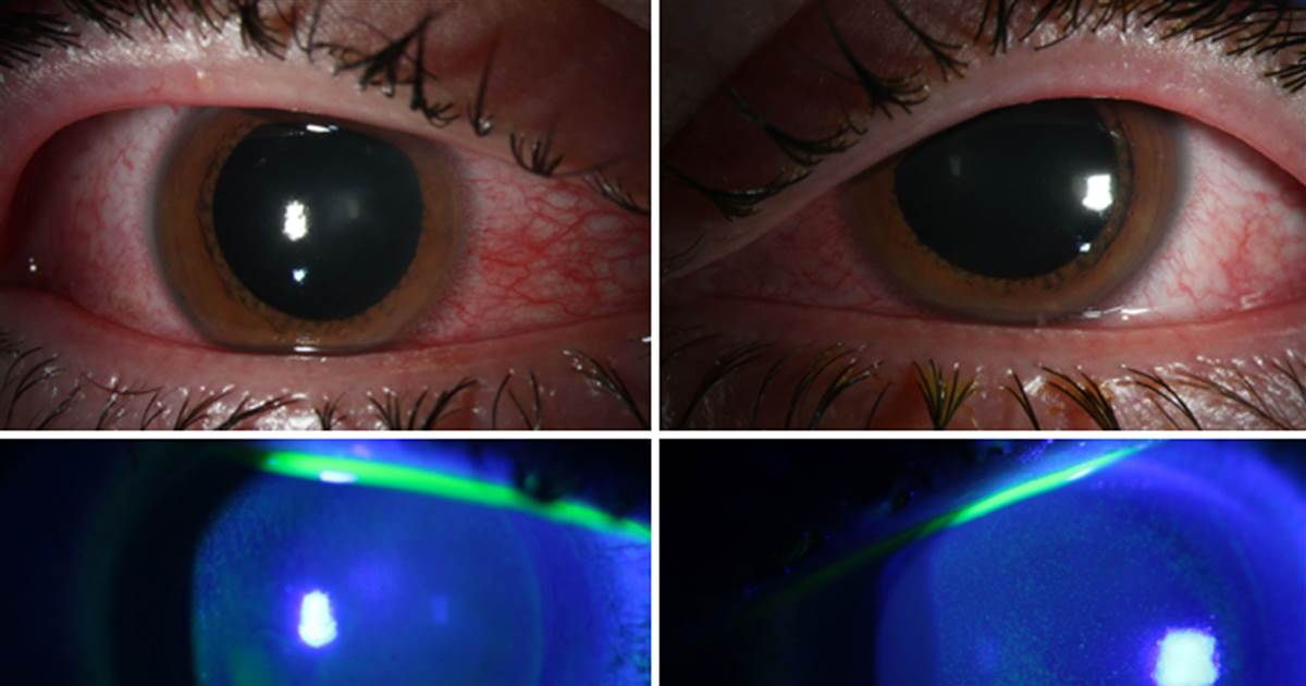 Doctors warn about eye damage from UV lights to kill the coronavirus