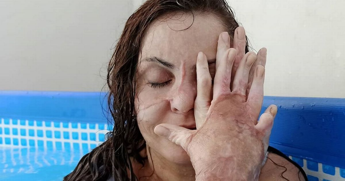Explosion burns half of mum's face off as client turns on hob on cleaning job