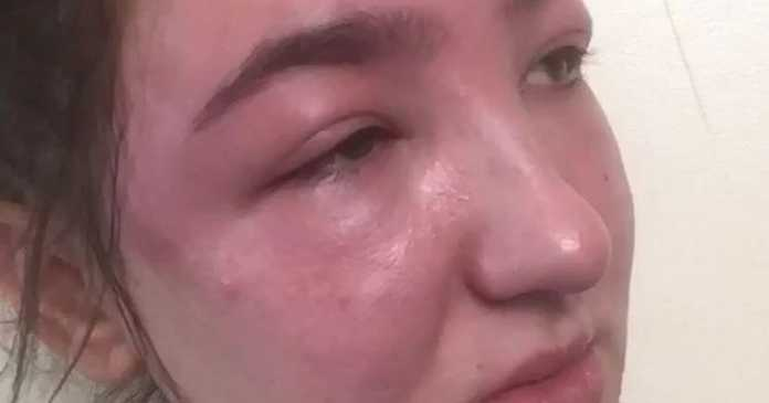 Eyebrow tint left woman looking like she'd been beaten up - twice