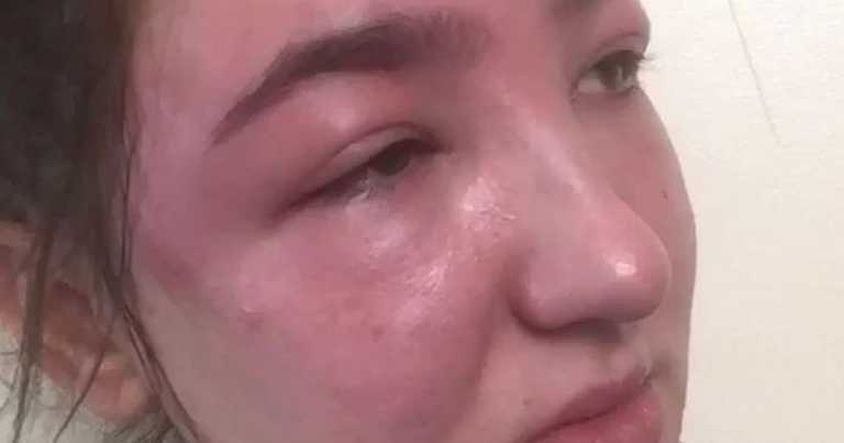 Eyebrow tint left woman looking like she'd been beaten up – twice