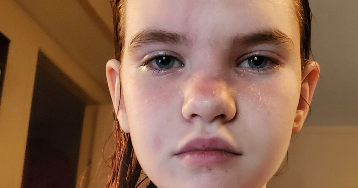 Schoolgirl swimmer, 12, is so allergic to water even a shower could kill her