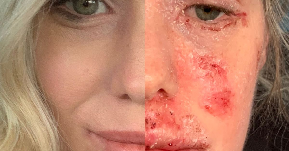 Woman left bedbound for three months after steroid creams left her skin red raw