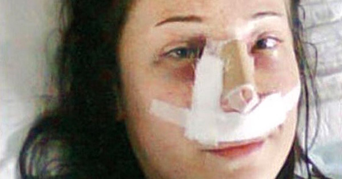 Woman forced to have both legs amputated after 'botched nose job' in Turkey