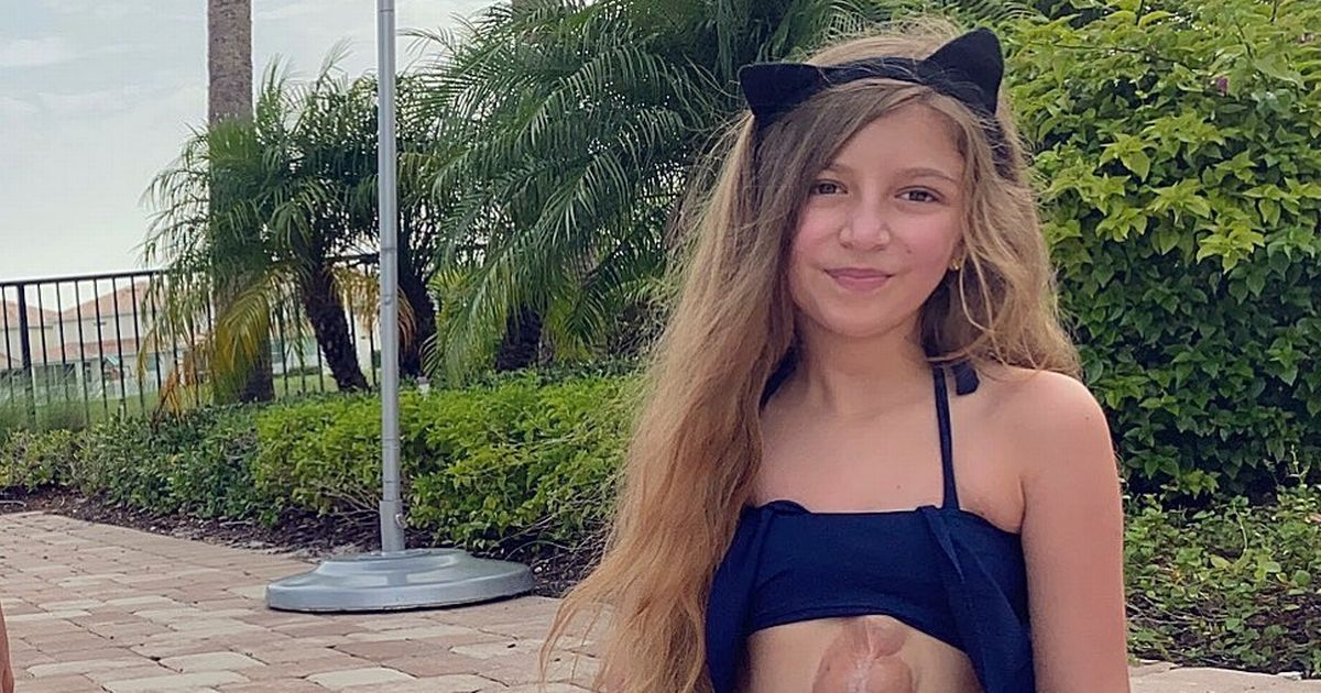 Girl, 11, born with heart beating outside her chest says it won't hold her back