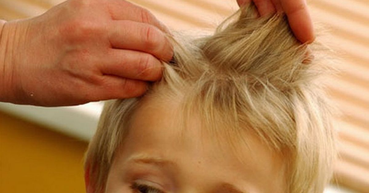 Head lice treatment may be the key to beating coronavirus, study suggests