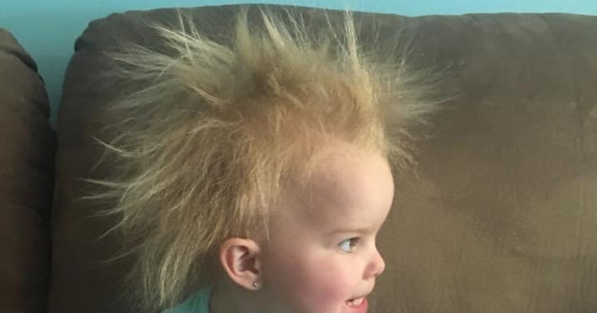 Little girl has uncombable hair syndrome characterised by untameable locks