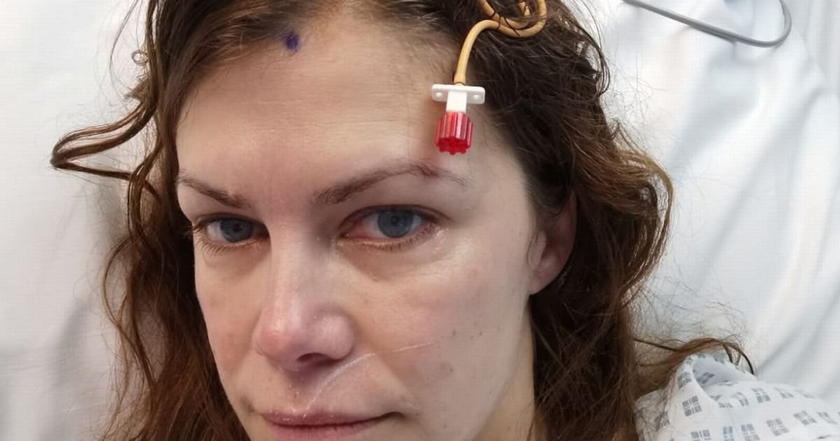 Routine eye condition revealed woman had 'ticking time bomb' brain condition