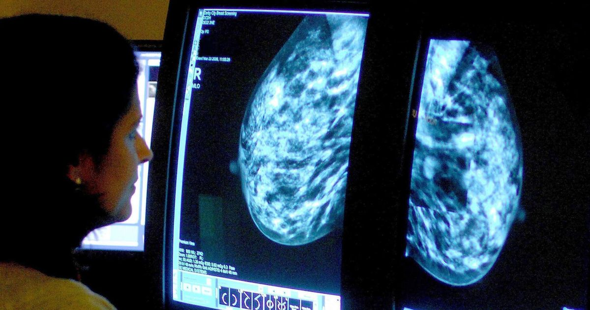 'Simple lifestyle changes' can prevent thousands of cancer cases