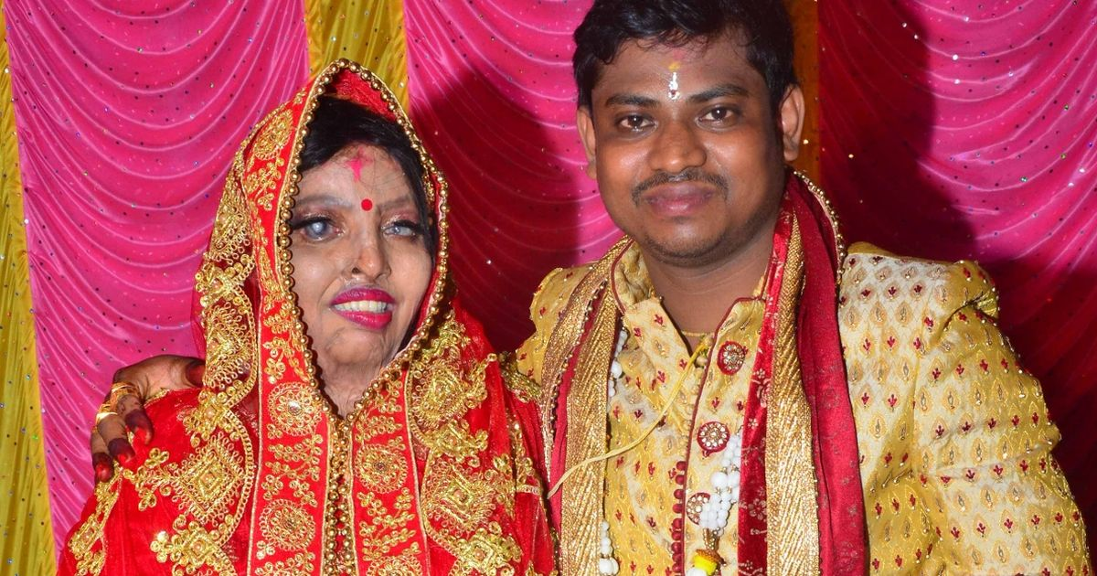 Woman doused in acid after rejecting proposal marries man she met in hospital
